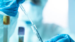 Testing, not proof of vaccination, should be the way forward: WTTC